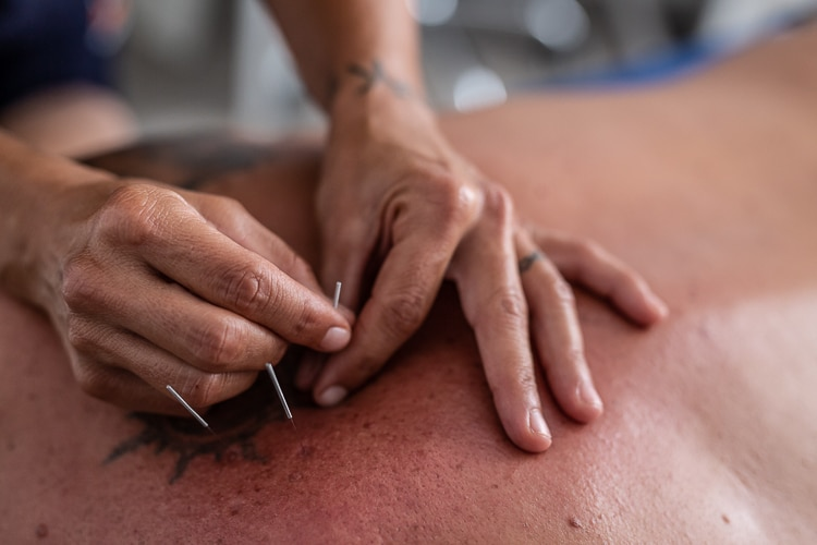 acupuncture in mallorca
